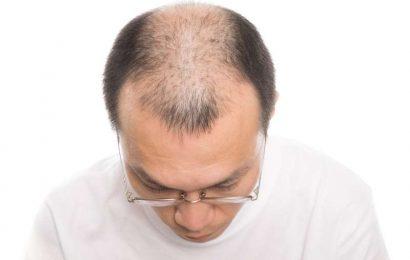男性脫髮,三招教你如何生髮快