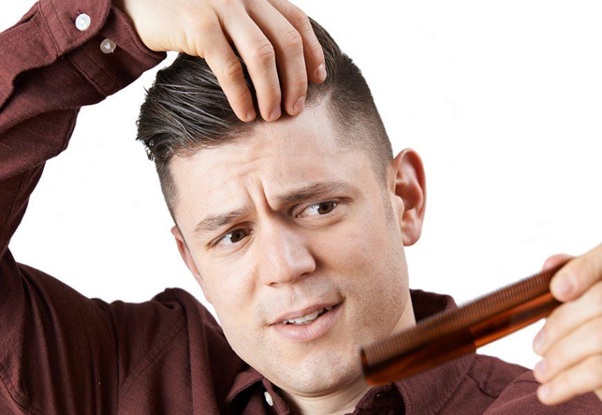 雄性禿年輕化 30歲前頂上危機心慌慌