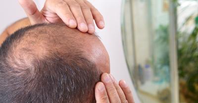 天冷乾燥狂掉髮! 30秒頭皮按摩拯救落髮危機