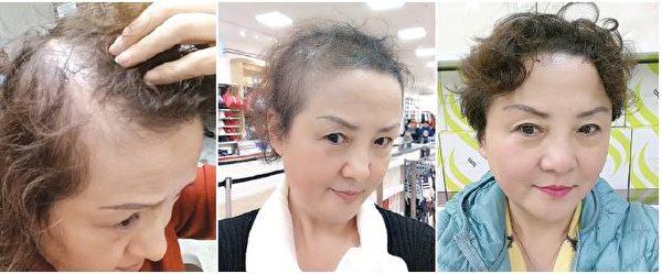 你知道根治脫髮的祕訣是什麽嗎?