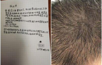 男孩分期2年買生髮儀贈父親 網民︰為髮際線操碎了心