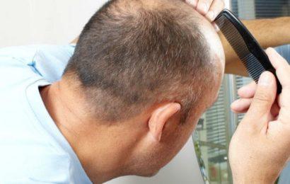 生雞蛋生髮恐禿頭 新型植髮技術助長毛髮