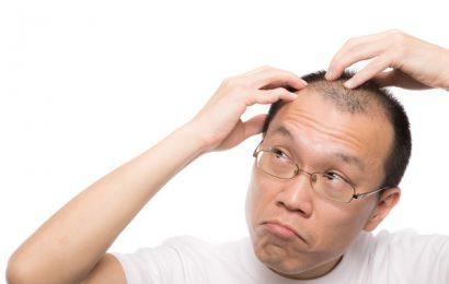 雄性禿誤信偏方恐無髮可救 醫:掌握3關鍵逆轉「禿」!