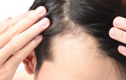 養髮液能「生髮」? 皮膚科醫師:浪費時間浪費錢