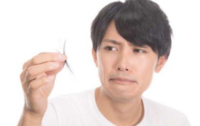 男性脫髮有三個特徵 男人預防脫髮多吃大豆杏仁